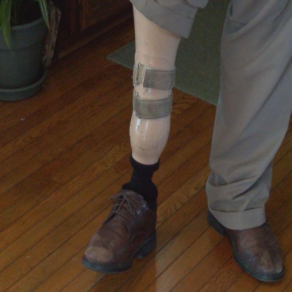 PROSTHETIC LEG_21423
