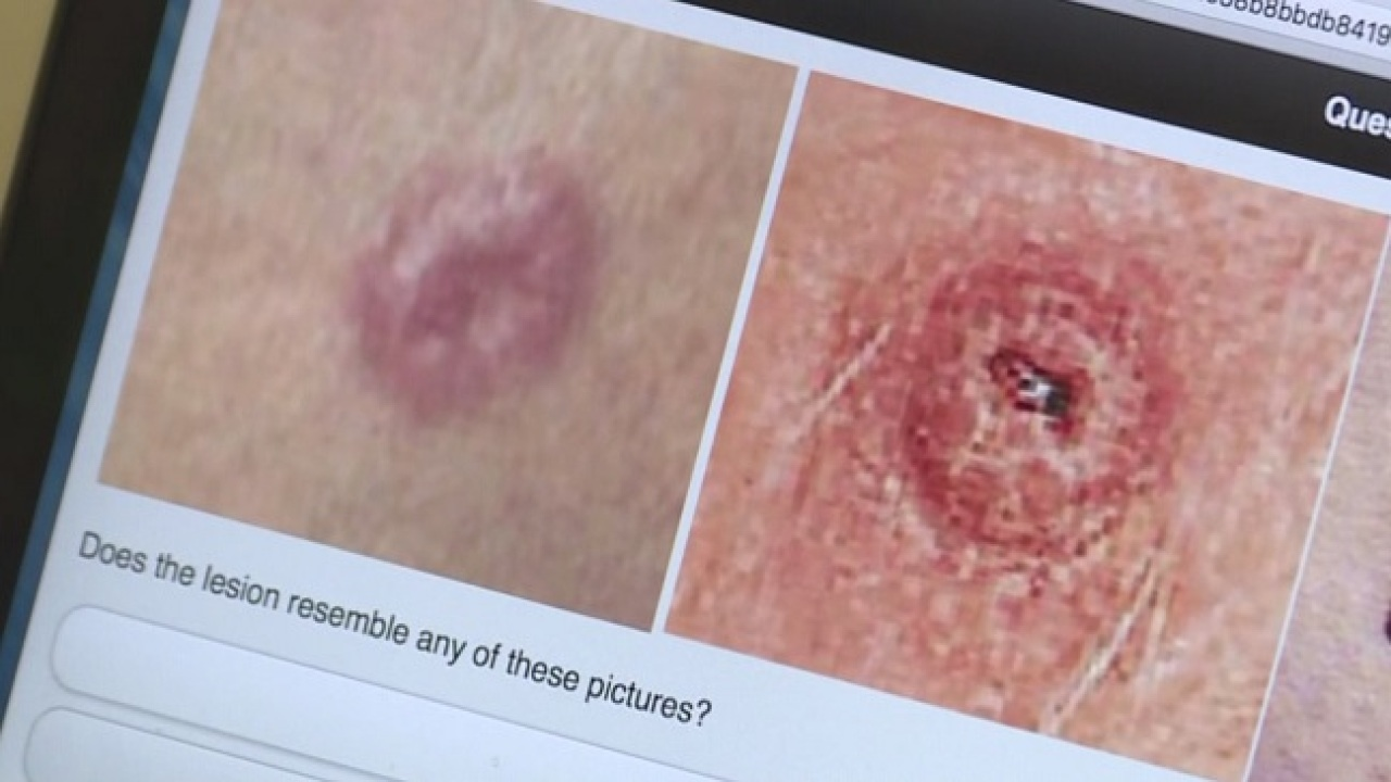 University Of Texas Students Create App To Detect Skin Cancer