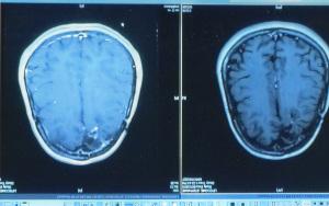 tumor1-1_154443