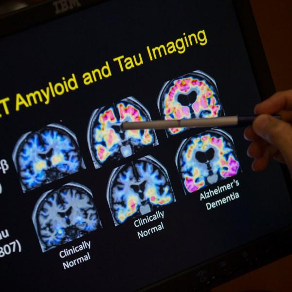 Alzheimers_Disease_37927-159532.jpg41970563
