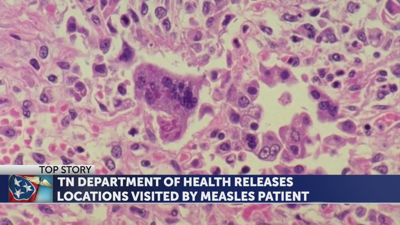 Health department identifies two locations where public may have been exposed to measles